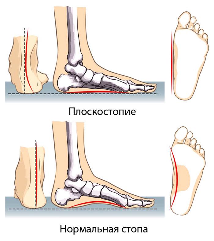 Отличие нормальной стопы от стопы с плоскостопием