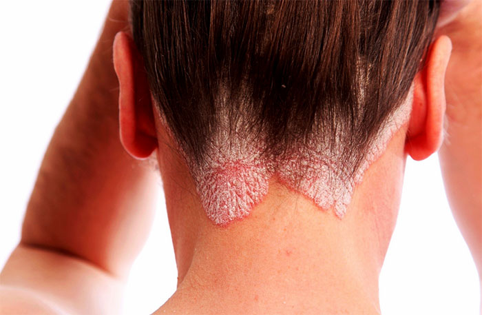 Заболевание кожи на шее
