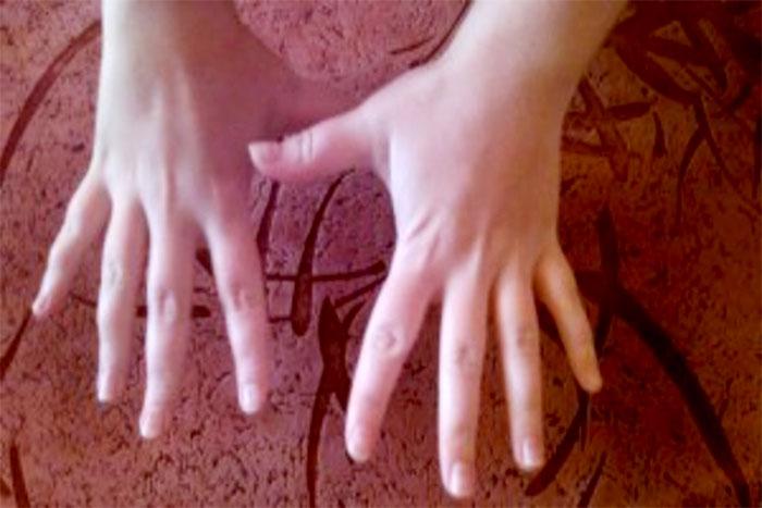 Выпрямление пальцев рук