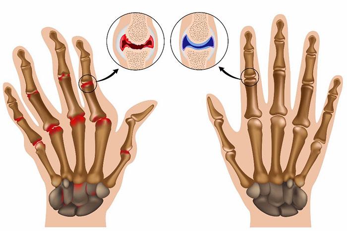Заболевания суставов пальцев