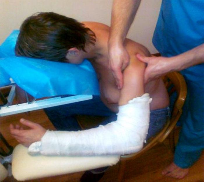 Массаж плеча при переломе руки