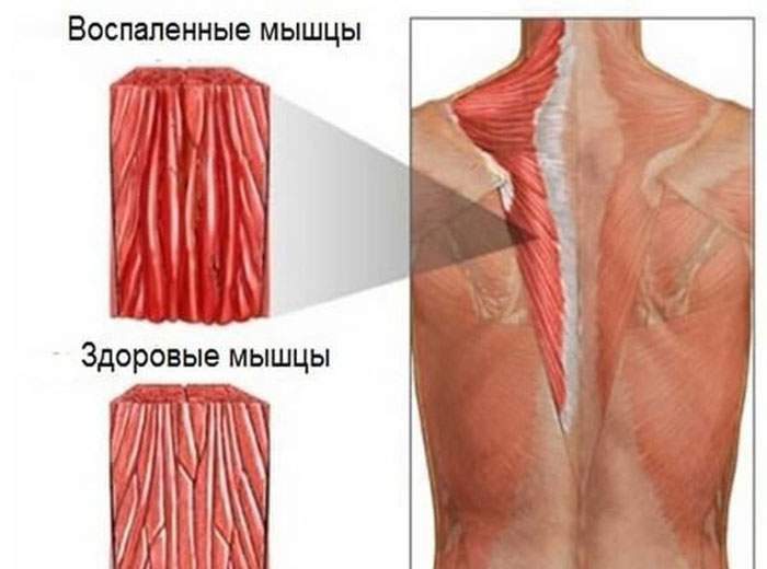 Мышцы при миозите