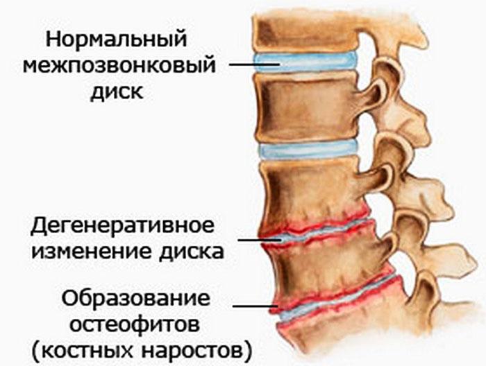 Последствия остеохондроза