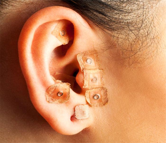 Акупунктурное воздействие на точки ушной раковины