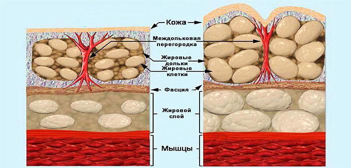 Структура кожи с целлюлитом
