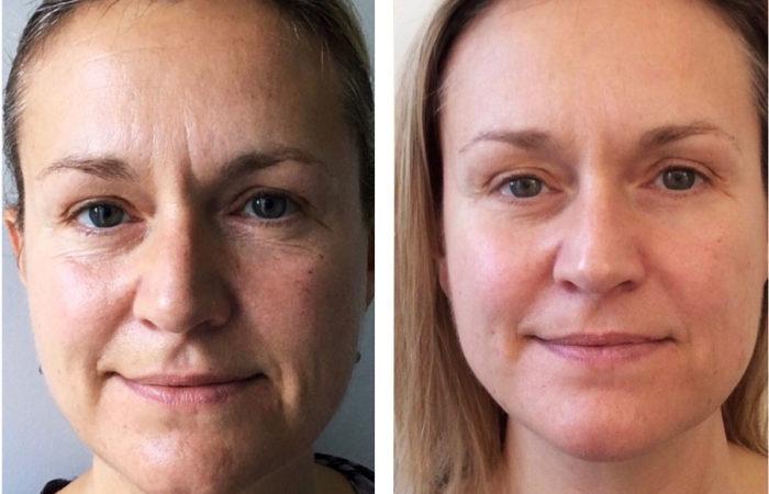 До и после массажа лица