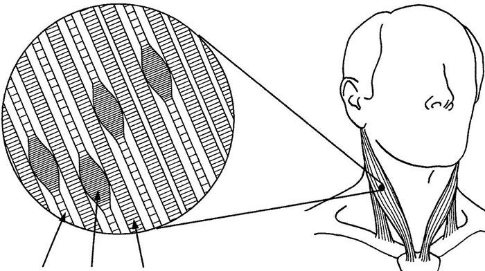 Триггерные миофасциальные точки