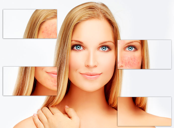 Лечение дерматита на лице