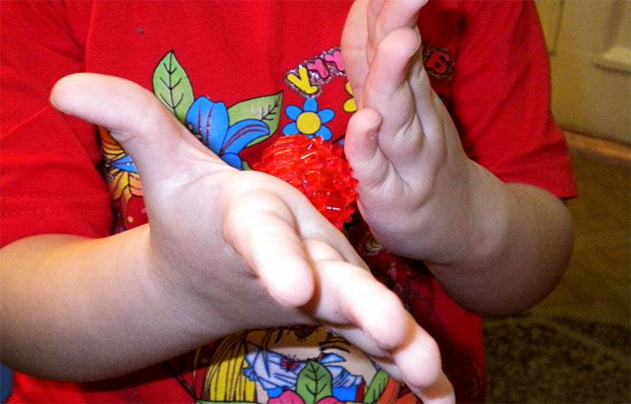 Массаж ладоней ребенка при помощи мячика с шипами