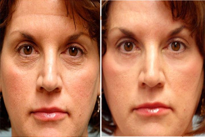 Кожа лицо до и после массажа